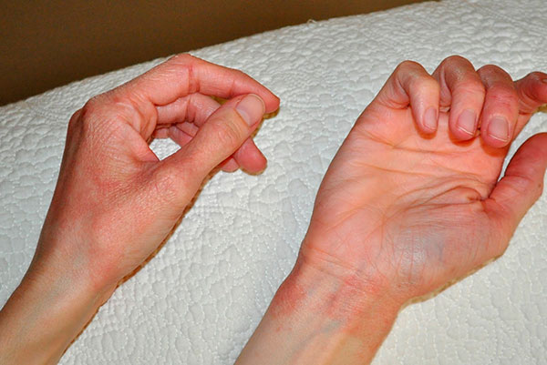 аллергия на запястьях фото