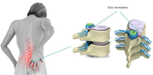 Нужна или нет операция по удалению грыжи диска