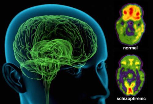 Параноидная, гебефренная, кататоническая и фебрильная шизофрении