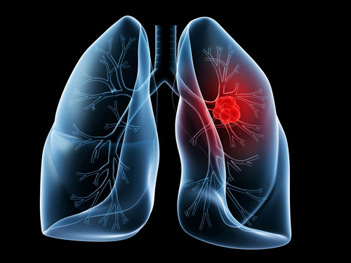 Рак легких: общая информация