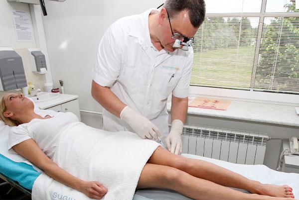 Операция по удалению варикозных вен (флебэктомия)