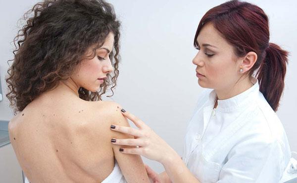 6 вещей о раке кожи, которые должен знать каждый