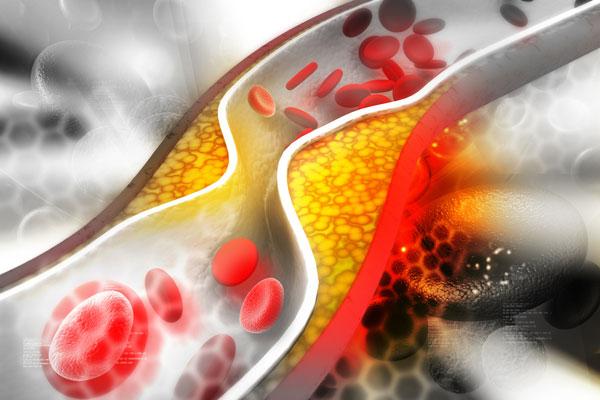 Советы по снижению уровня холестерина