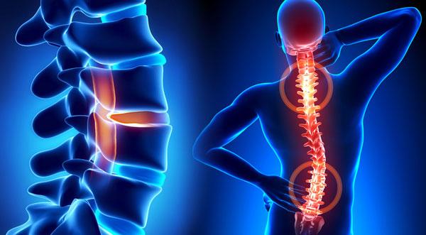 Сколиоз: причины, симптомы, лечение