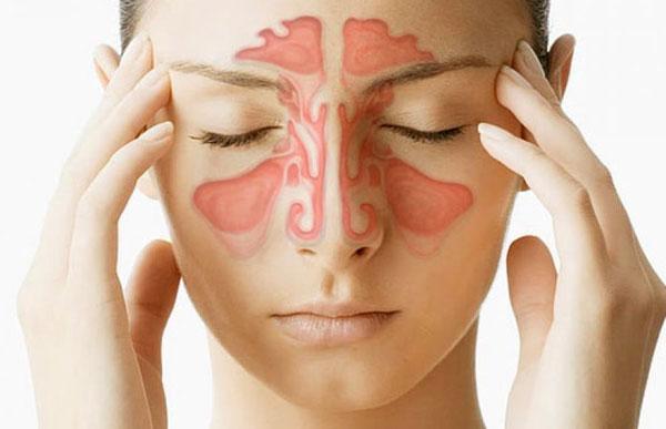 Что такое синусит? Симптомы и лечение
