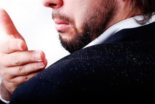 Причины появления перхоти у мужчин и женщин