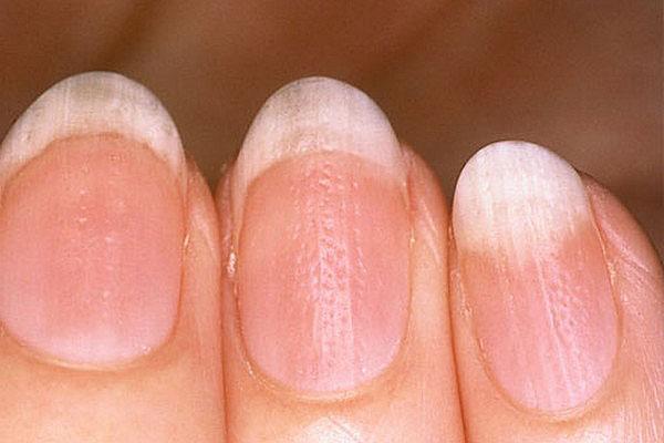 Причины ухудшения состояния ногтей и пути их восстановления