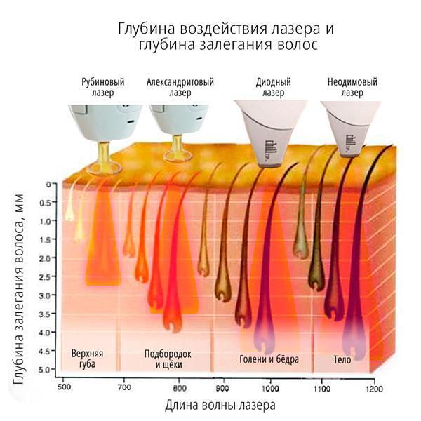 lazernaya-epilyatsiya4