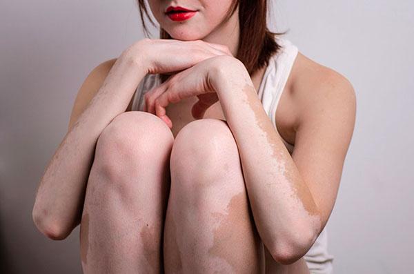Витилиго - серьезное заболевание или косметический дефект