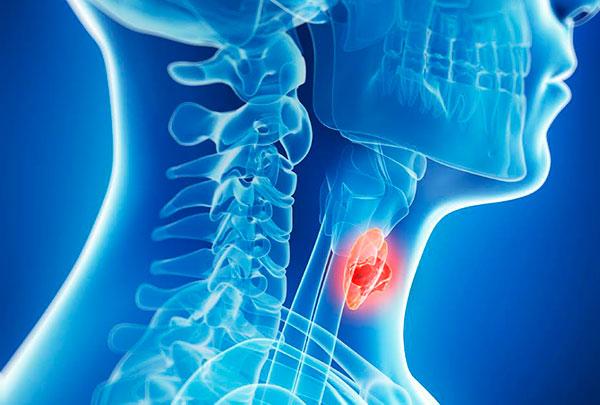Щитовидная железа - что это за орган