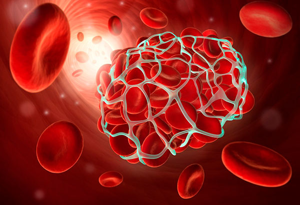 Возникновение и лечение тромбоза