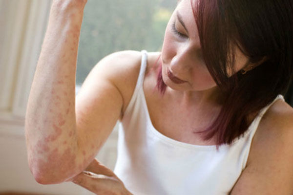 Причины и симптомы аллергического дерматита