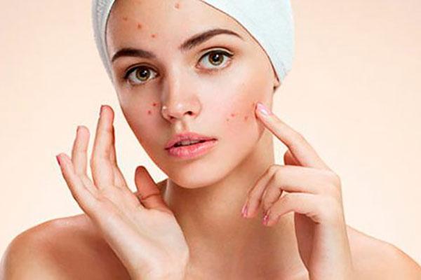 Прыщи на лице – что делать и как предотвратить их появление