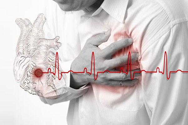 Как жить после перенесенного инфаркта миокарда