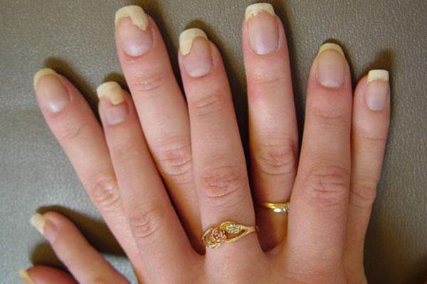 Избавляемся от грибка на ногтях