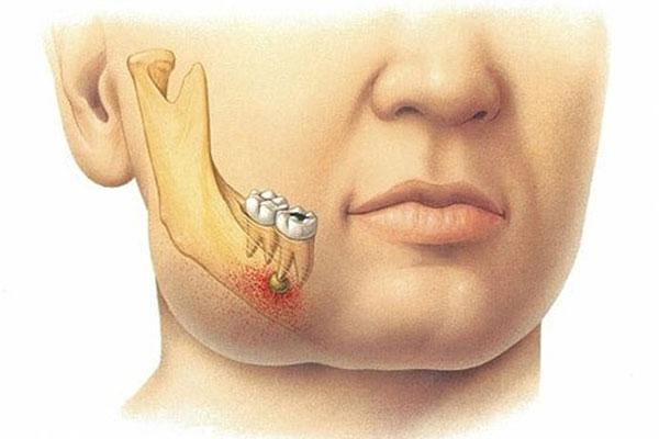 Гнойный пульпит: симптомы, лечение, профилактика
