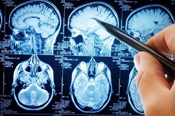 Опухоли головного мозга: причины, симптомы, лечение