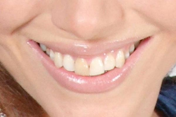 Отчего зубная эмаль меняет свой цвет