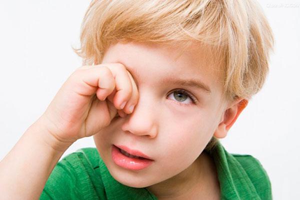 Конъюнктивит у ребенка