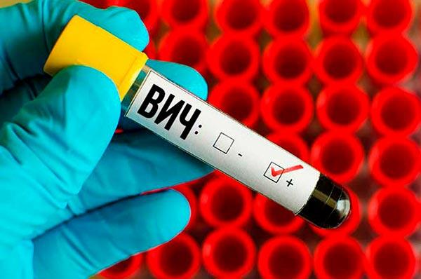 48 фактов о ВИЧ/СПИДе и ИППП, которые необходимо знать каждому