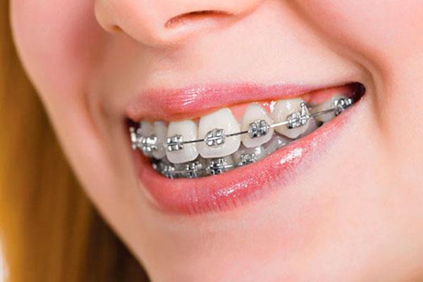 Подростковые ортодонтические проблемы