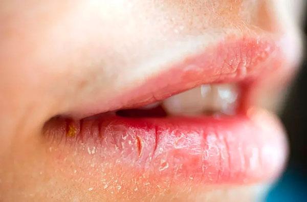 Как избавиться от трещинок в уголках рта