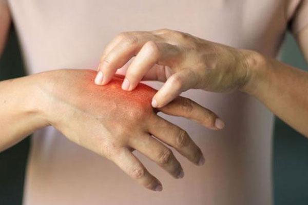 Аллергия: симптомы и советы, как защитить себя